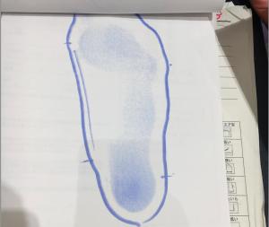 子供の浮き指フットプリント