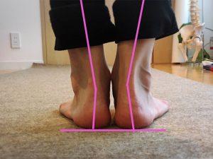 過回内の足首