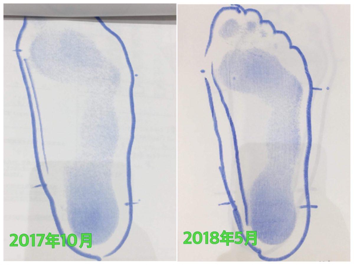 子供の足ビフォア/アフター