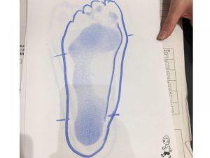 子供の足の土踏まず形成