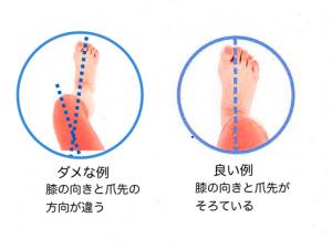 膝と爪先の向きの例