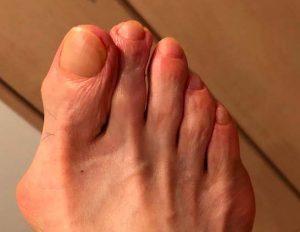 70歳男性爪施術後