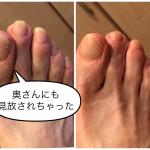 足の爪、奥さんにも見放されました【お客様のご感想】