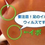 要注意!足のイボはウィルスです タコ・魚の目との違いは?