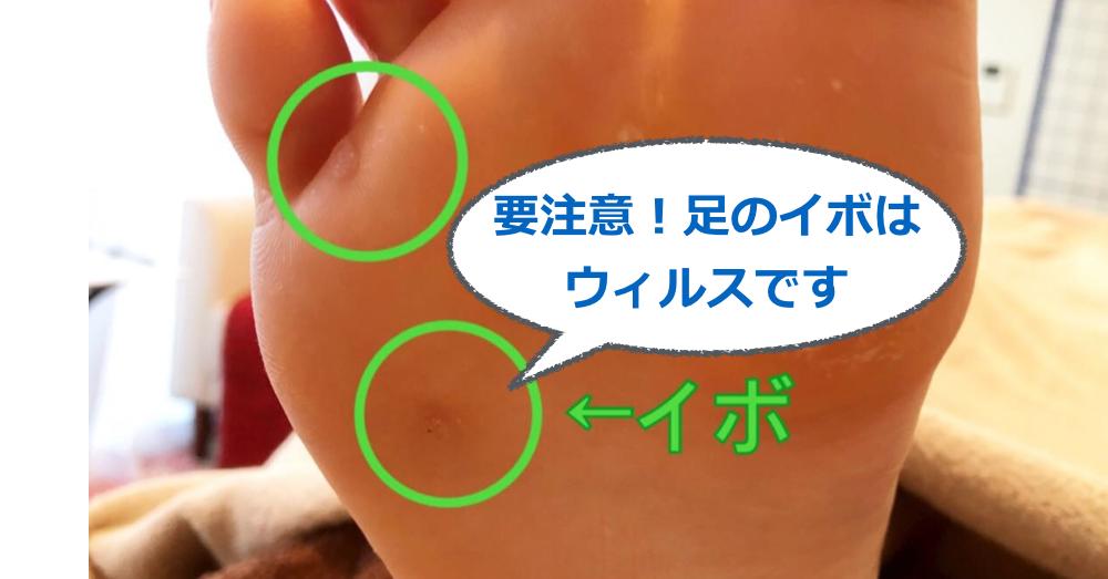 要注意!足のイボはウィルスです