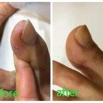 欠け爪・割れ爪・はがれ爪など、足爪の「修復ケア」はじまります!