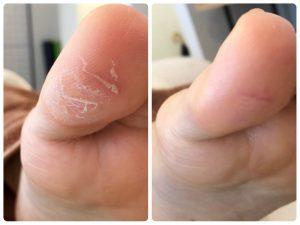 親指の皮膚のガサガサ