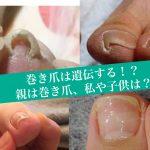巻き爪は遺伝する?巻き爪写真