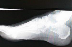 骨棘のレントゲン写真