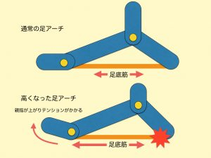 足底筋とアーチ02