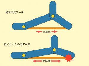 足底筋とアーチ01