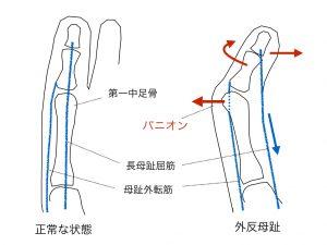 外反母趾構造
